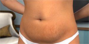 abdominoplastie chirurgie esthétique